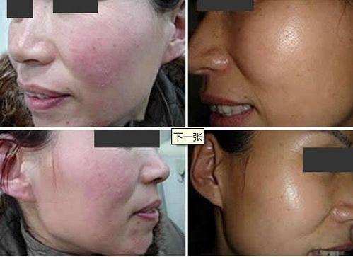 敏感性皮肤怎么保养